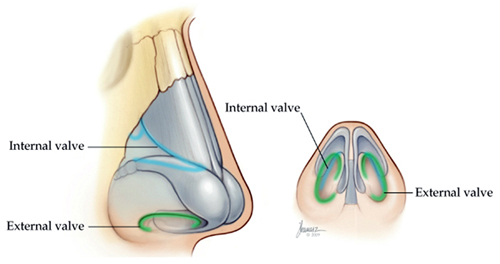 코의 내측 밸브와 외측 밸브의 위치를 설명하는 그림