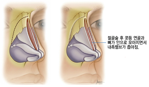 절골술 후 콧등 연골과 뼈가 안으로 모아지면서 내측 밸브가 좁아진 상태를 설명하는 그림